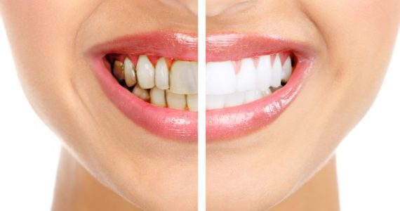 What is gingivitis and what are the symptoms?